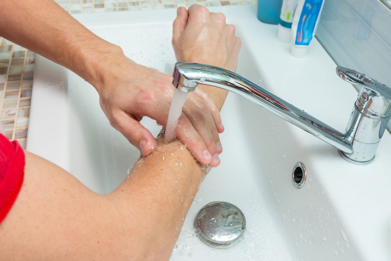 やけどをした場合はすぐに流水で冷やしてください。