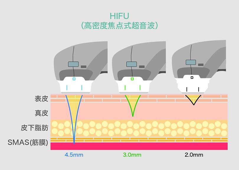 HIFUのイラスト